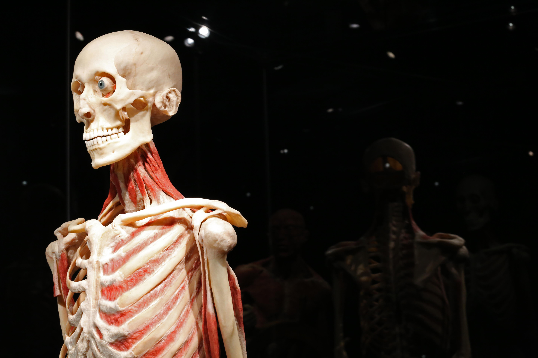Lyckoplast och spritburk – Body Worlds och Museum Vrolik i Amsterdam